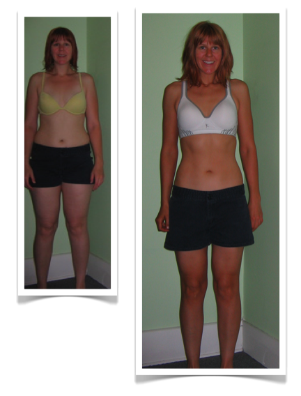 Alyssas Before and After DAMY Health Pictures