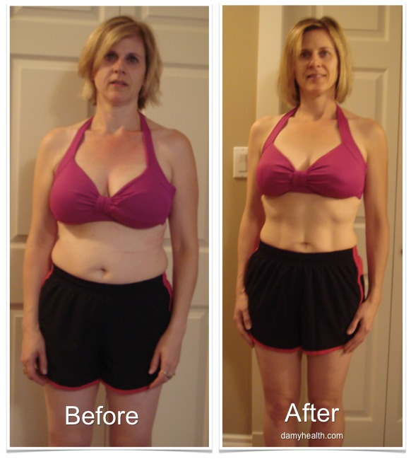 Tammy Before and After Front