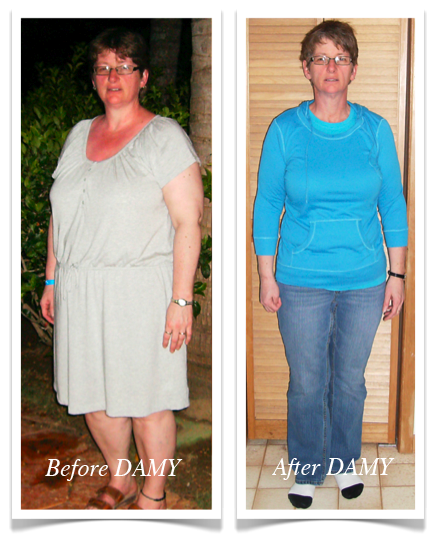 Gails 80 lb weight loss with DAMY Health_1