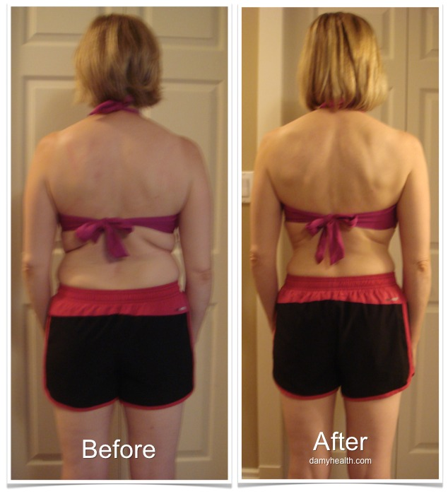 Tammy Before and After Back